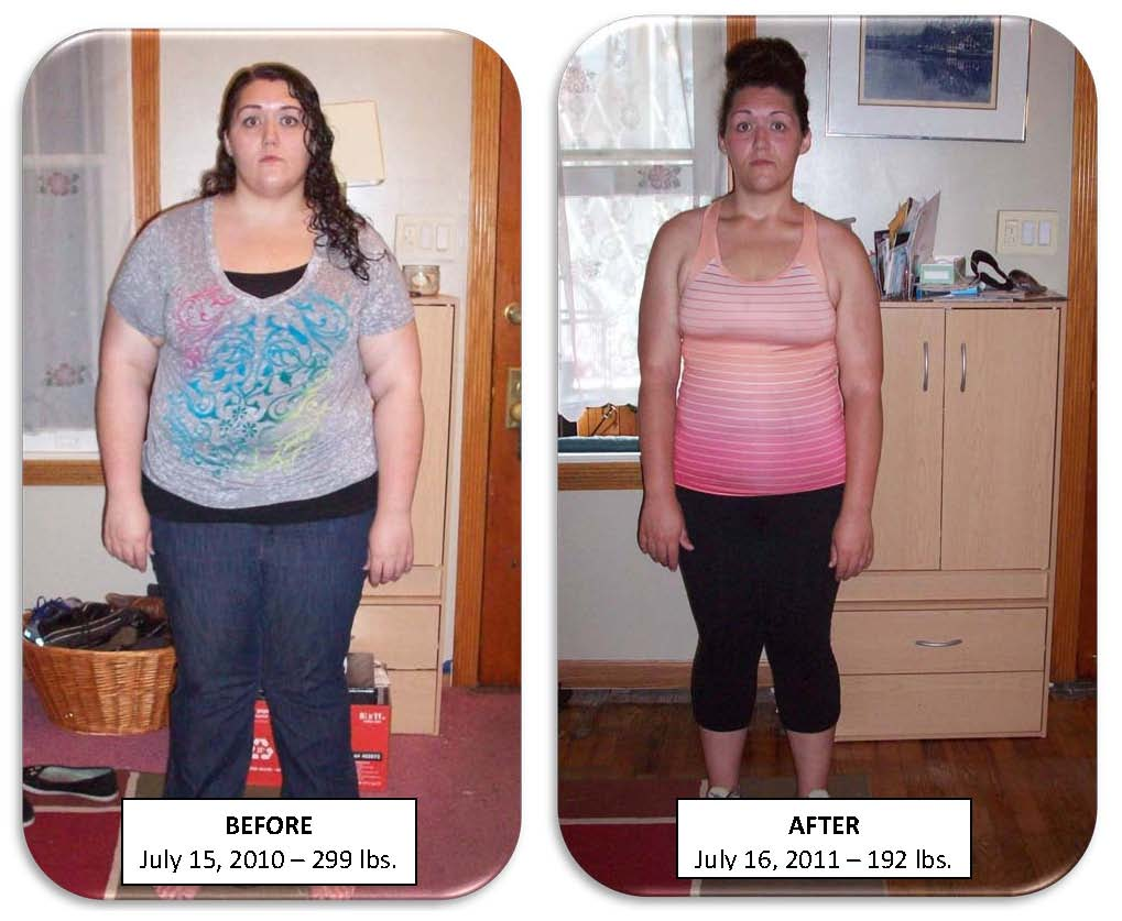 Gastric Bypass The Incredible Shrinking Bride